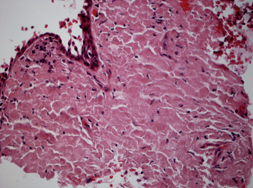 Figure 2: Conjunctival amyloidosis.  Hematoxylin and eosin stain of conjunctival tissue biopsy. Extensive hyalinization and diffuse eosinophilic extracellular material consistent with amyloidosis. (Image courtesy of Paul J. Bryar, MD)