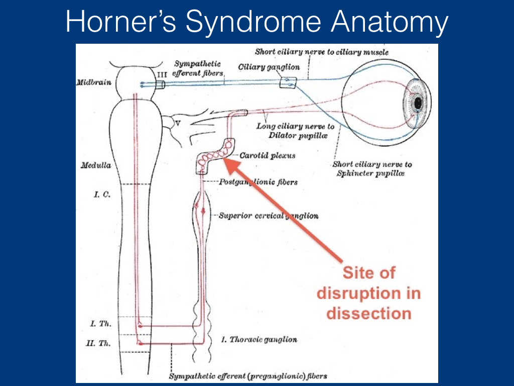 Horner Syndrome Grand Rounds .018.jpeg