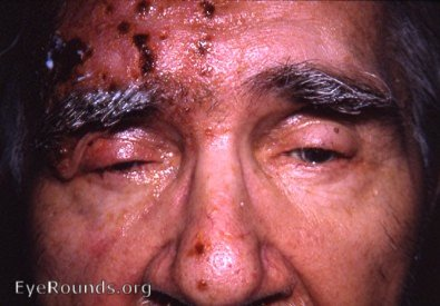 Herpes Zoster Ophthalmicus Image From EyeRounds Online Atlas of Ophthalmology Contributor: William Charles Caccamise Sr,MD, Retired Clinical Prof of Ophthalmology-U of Rochester School of Medicine and Dentistry