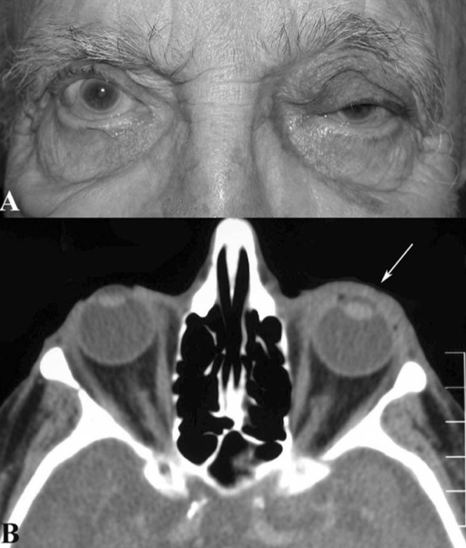 Figure 1: Orbital amyloidosis Diffuse infiltration by amyloidosis seen throughout patient's left anterior orbit (white arrow) without any posterior orbital involvement. (Reprinted from Periocular and Orbital Amyloidosis: Clinical Characteristics, Management, and Outcome. Ophthalmology 2006;113:1657-64 with permission from Elsevier.)11