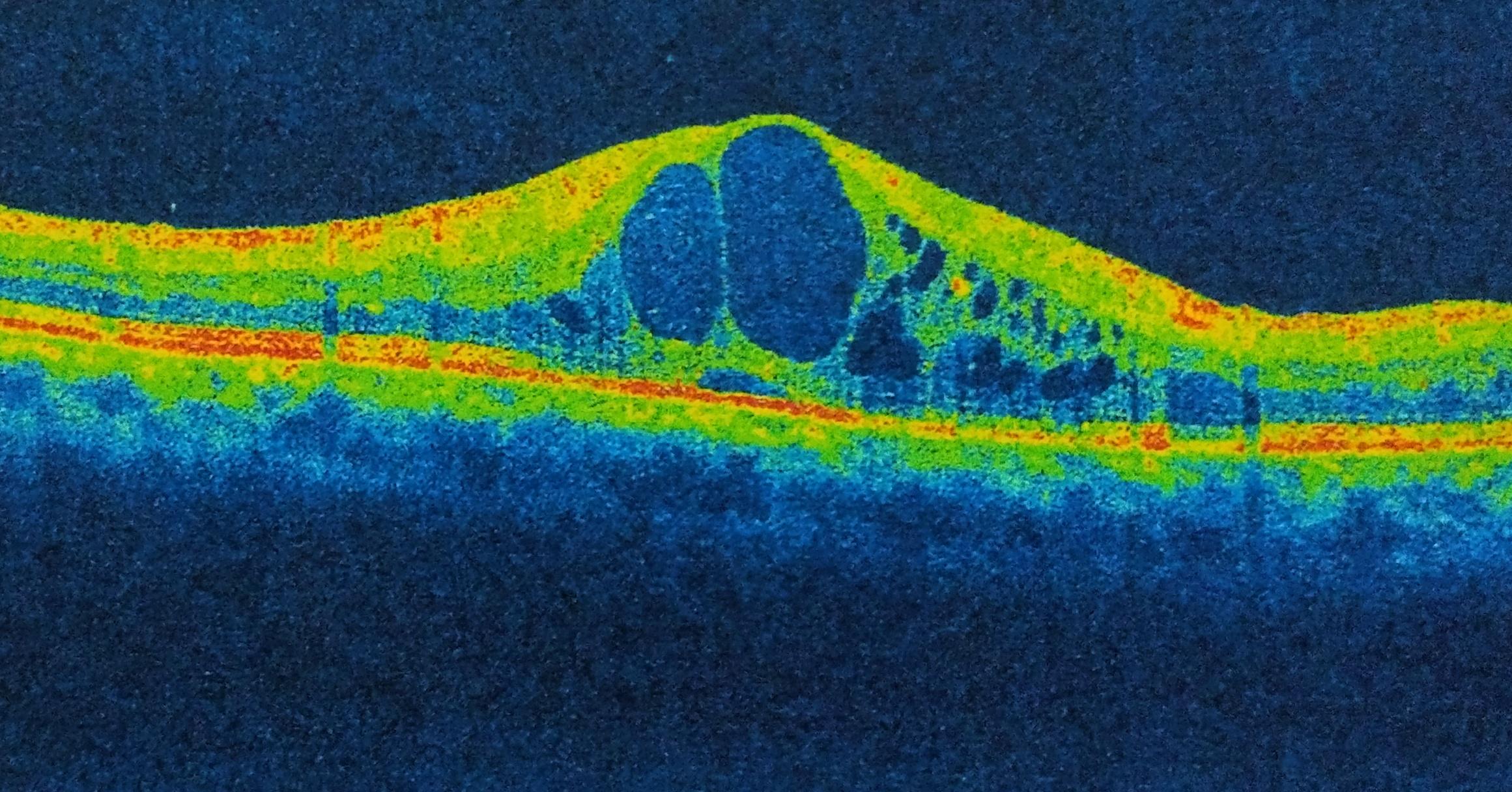 macular oedema oct