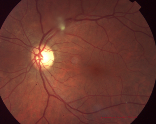 Figure 7: Retinal/Vitreous amyloidosis.  Tuft of vitreous amyloidosis emanating from retina and overlying superior vascular arcade. (Image courtesy of Anh-Danh Phan, MD)