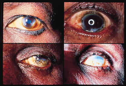 Progressive sclerosing keratitis associated with onchocerciasis infection