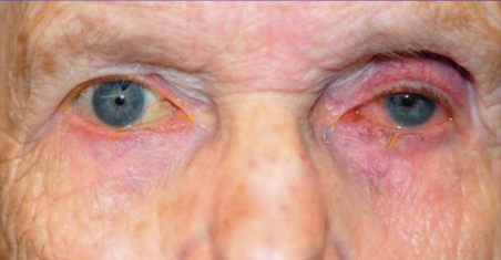 Fig 10: Patient treated with bimatoprost in the left eye only. Not the relative deepened sulcus, ptosis, and enophthalmos in addition to the injected ocular surface and prominence of lid vessels on the left side.