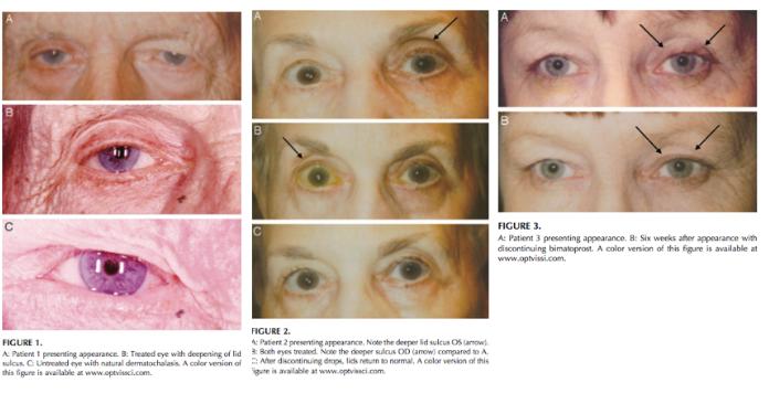 図1:PAPを示す3人の患者の元の症例シリーズ、Peplinski et al。