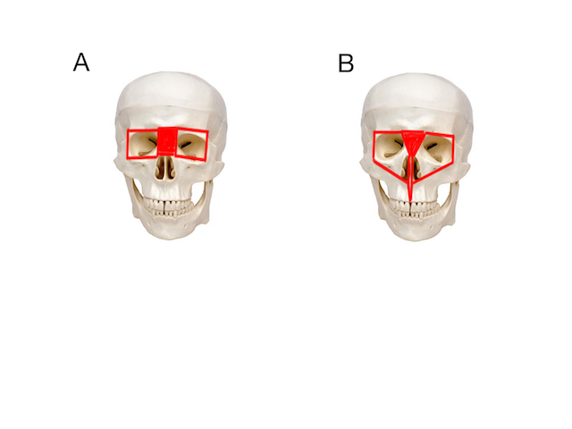 Figure 2 – A: Box osteotomy; B: Facial bipartition.
