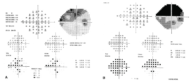 Figure 4: (a) initial visual field change; (b) visual field progression 2 years later [7].