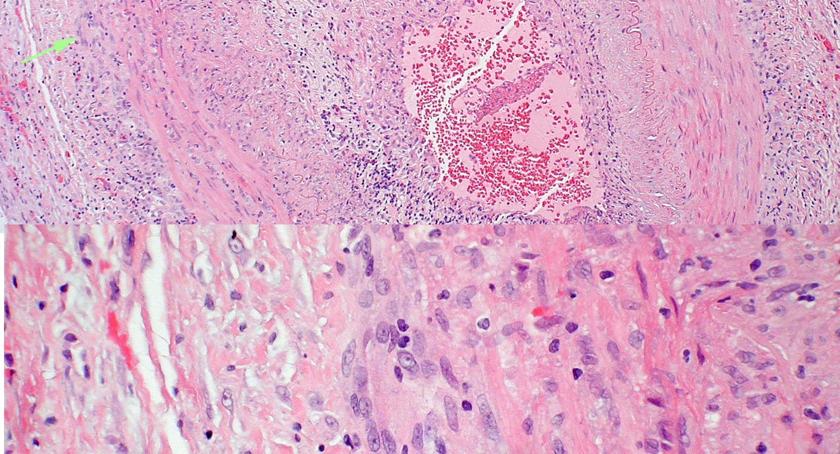 Pathologic specimen from a patient with biopsy proven giant cell arteritis.  Multi-nucleated giant cells (arrow) are present in the vessel wall.  Photograph courtesy of Ben Glasgow, M.D.