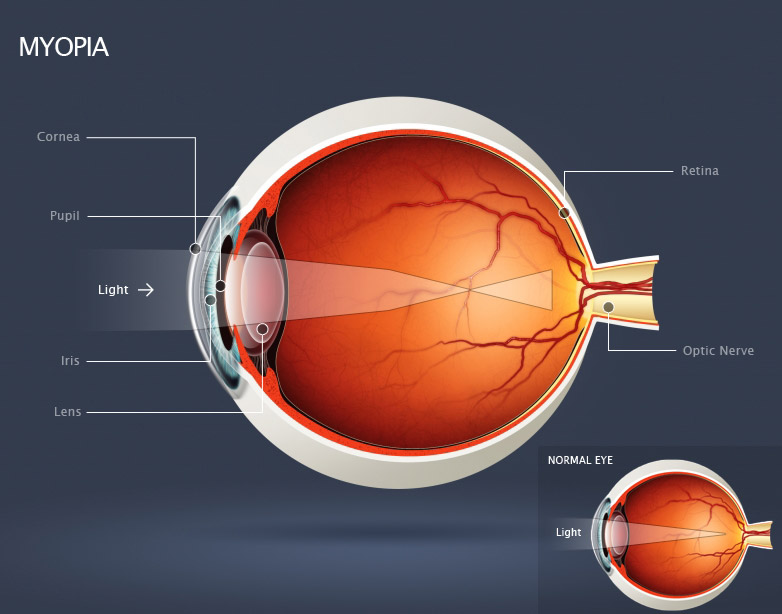 Myopia; light is focused in front of the retina