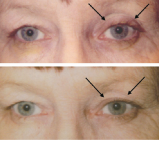 Fig 16: Patient initially on bimatoprost OS (top) and six weeks after discontinuation of medication (bottom).  Note the re-appearance of baseline pre-existing dermatochalsis.