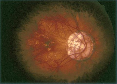 látás patológiája myopia myopia)