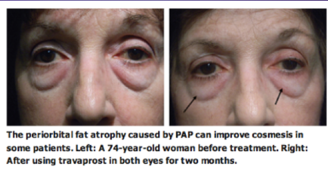 Fig 19: Patient who displayed a mild reduction in prominence of lower lid fat after bilateral bimatoprost therapy.