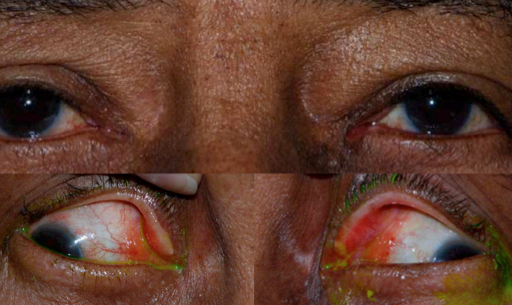 Figure 1: Conjunctival amyloidosis.  Smooth, waxy, yellow, relatively circumscribed masses are seen at bilateral medial canthi. Visualization of the lesions is improved with lateral gaze. (Image courtesy of Gary S. Lissner, MD)