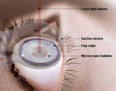 Figure 5. Illustration of a femtosecond laser cutting a LASIK flap.