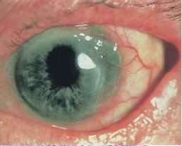 Mooren's ulcer.  A crescent-shaped ulceration with an overhanging central edge and a vascularized base is seen in in the temporal periphery of the cornea. Ⓒ 2014 American Academy of Ophthalmology.