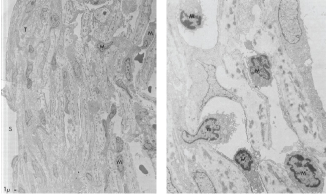 Figure 1: (a) Electron microscopy of trabecular meshwork in a PSS patient; (b) higher magnification view [5].