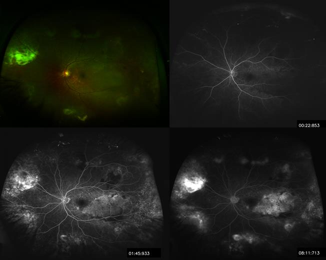 Figure 3.  Wide field Optos® of left eye with fluorescein angiography at 22s, 1:45s, and 8:11s demonstrating multiple areas of hemorrhages and serous retinal detachments.