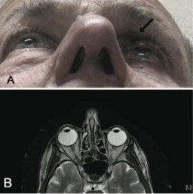 Fig 12: Patient initially presenting for 1 month of intermittent binocular diplopia with history of bimatoprost use in the left eye for 7 months. MRI brain, orbits and MRA head and heck were all performed, which were normal other than apparent enophthalmos and a kinking of the left optic nerve. Courtesy of Filippopoulos et al.