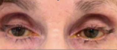 Fig 9: Patient treated for several years with bilateral bimatoprost therapy. Note the bilateral deepened upper lid sulcus and the bilateral mild ptosis.