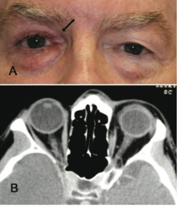 "Fig 11: Patient presenting with ""fullness of left upper lid"" after using bimatoprost in the right eye for 4 years. CT orbits obtained to rule out pathology causing exophthalmos on the left shows a normal left orbit and a more posterior positioned globe on the right.  Courtesy of Filippopoulos et al."