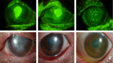 Treatment of persistent corneal epithelial defect.png