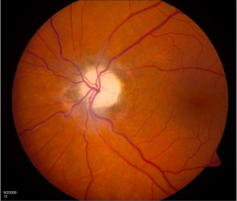 Optic atrophy.jpg