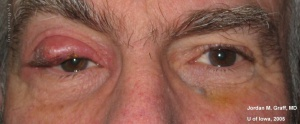 Chalazion Image from EyeRounds Online Atlas of Ophthalmology Contributor: Jordan M. Graff, MD, University of Iowa Category: External Disease Diagnosis: Chalazion
