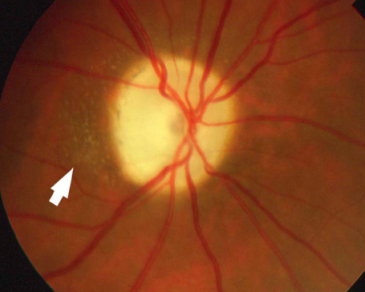 Neuroretinitis Irregular Star.png