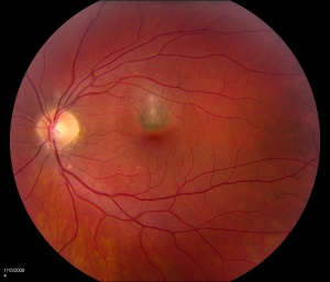 Color fundus photograph 3 months after second injection of bevacizumab shows a grayish subfoveal CNV membrane.