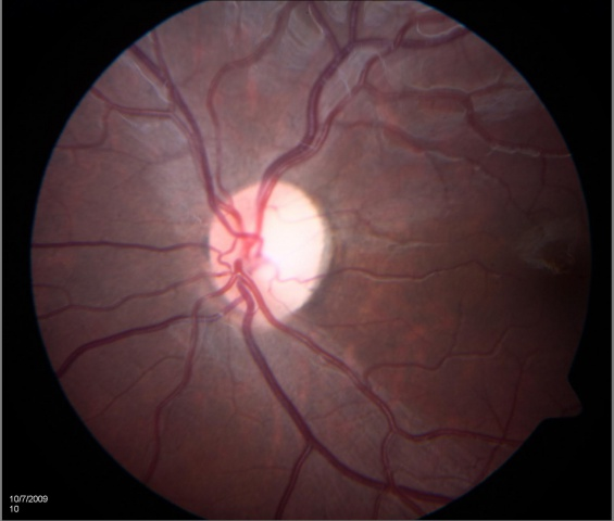 Optic atrophy2.jpg