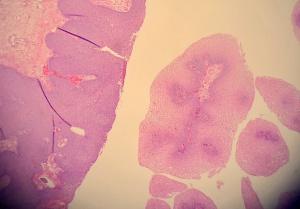 Papillómák a nyakon a nők kezelésében, Nyaki papillómák: okok és kezelés. - Melanóma