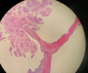 Pikkelyes papilloma lacrimal sac - vasfehu