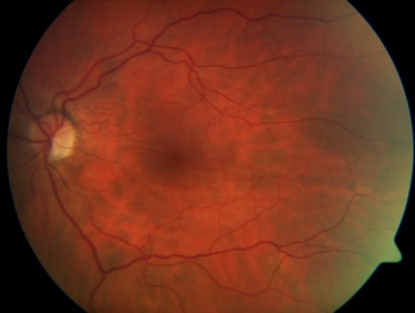 Fundus Photo demonstrating horizontal chorioretinal folds