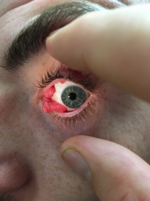 Conjunctival Papilloma.jpeg